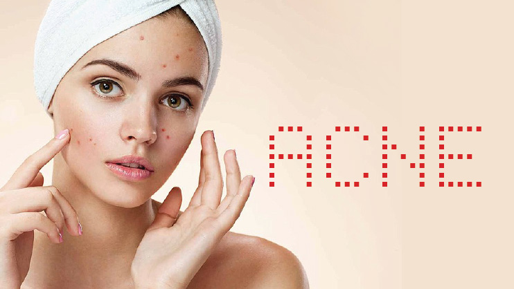 How to overcome the Acne Problem?
