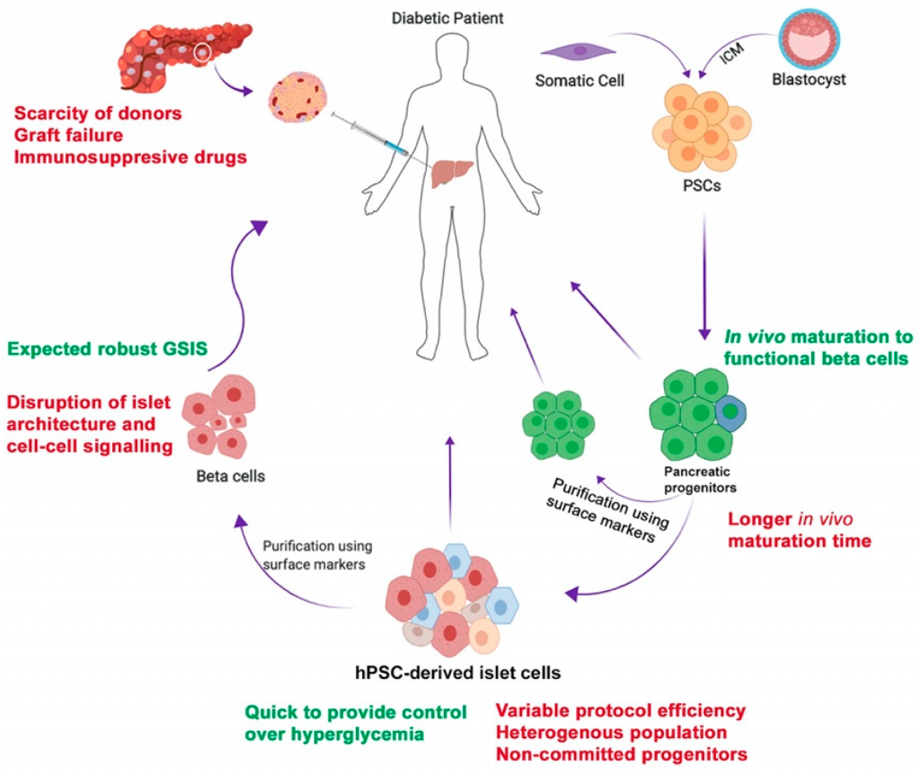 Stem Cell therapy to treat diabetes